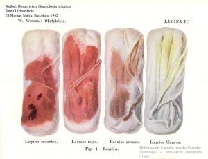 menstruacion 1