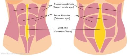 Resultado de imagen para diastasis del recto abdominal